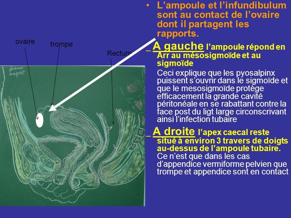 Rapport par lintermédiaire du mesosalpinx Listhme répond: –En Av à la vessie, au ligt rond –En Arr au ligt propre de lovaire –En haut aux anses grêles