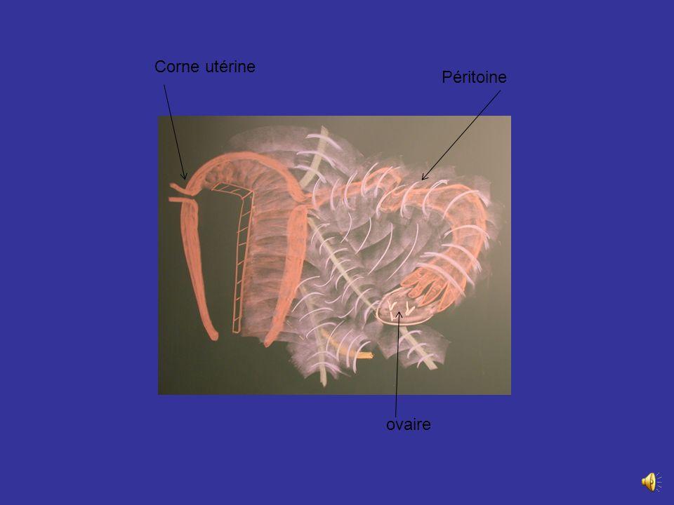 Lampoule et linfundibulum sont au contact de lovaire dont il partagent les rapports. _ A gauche lampoule répond en Arr au mésosigmoïde et au sigmoïde