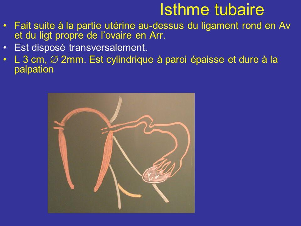 Isthme tubaire Fait suite à la partie utérine au-dessus du ligament rond en Av et du ligt propre de lovaire en Arr.
