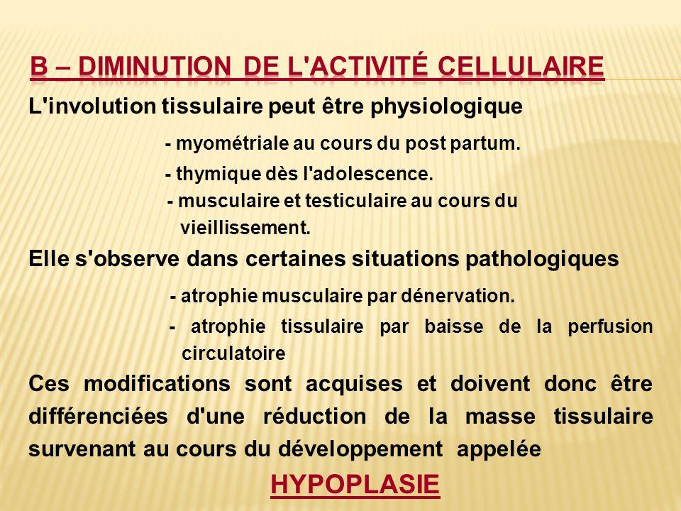 L'involution tissulaire peut être physiologique - myométriale au cours du post partum. - thymique dès l'adolescence. - musculaire et testiculaire au c