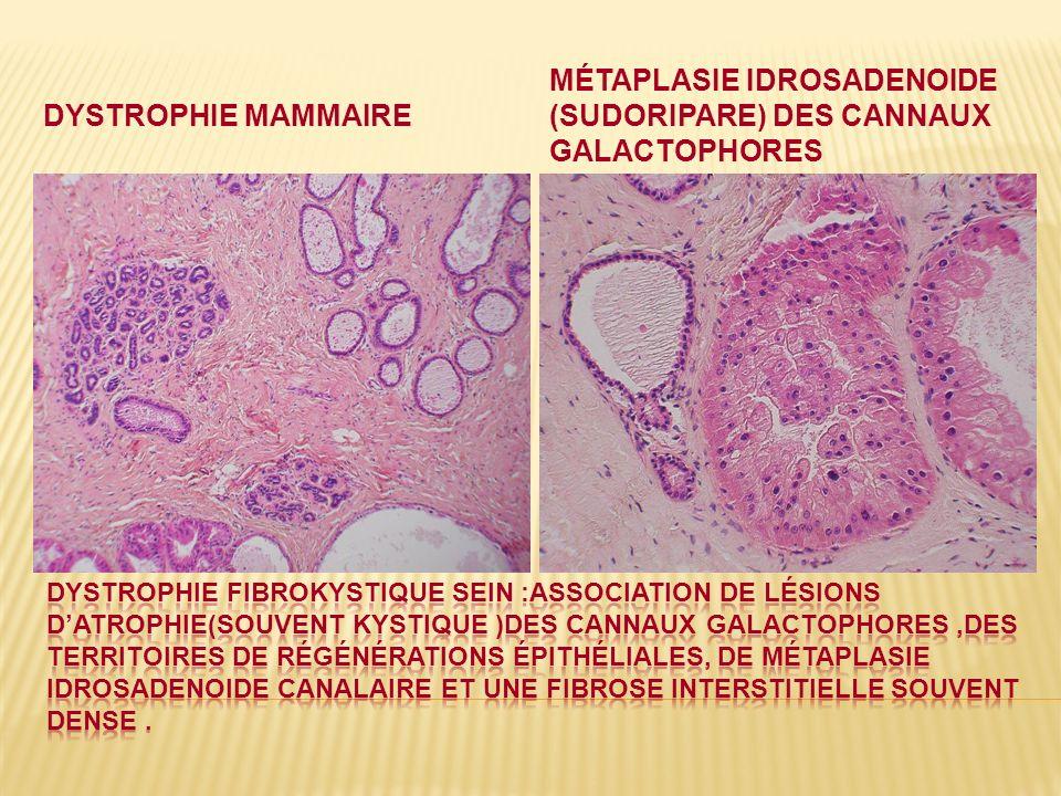 DYSTROPHIE MAMMAIRE MÉTAPLASIE IDROSADENOIDE (SUDORIPARE) DES CANNAUX GALACTOPHORES