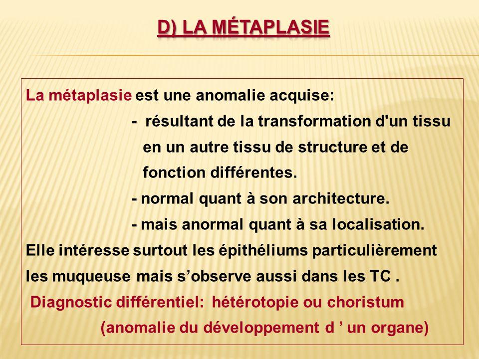 La métaplasie est une anomalie acquise: - résultant de la transformation d'un tissu en un autre tissu de structure et de fonction différentes. - norma