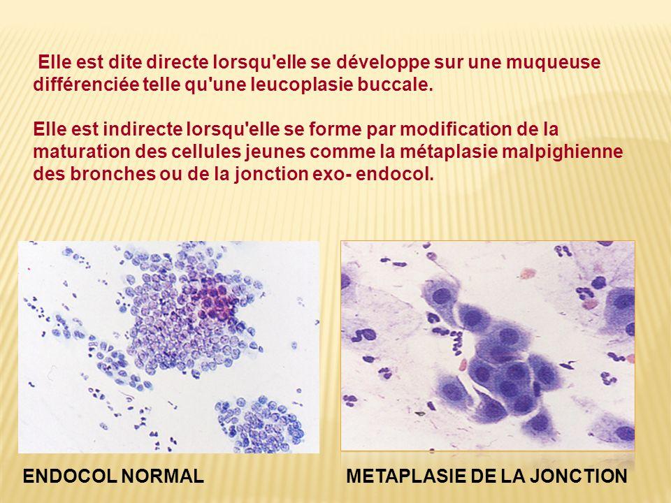 Elle est dite directe lorsqu'elle se développe sur une muqueuse différenciée telle qu'une leucoplasie buccale. Elle est indirecte lorsqu'elle se forme