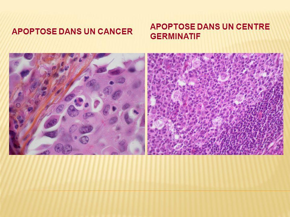 APOPTOSE DANS UN CANCER APOPTOSE DANS UN CENTRE GERMINATIF