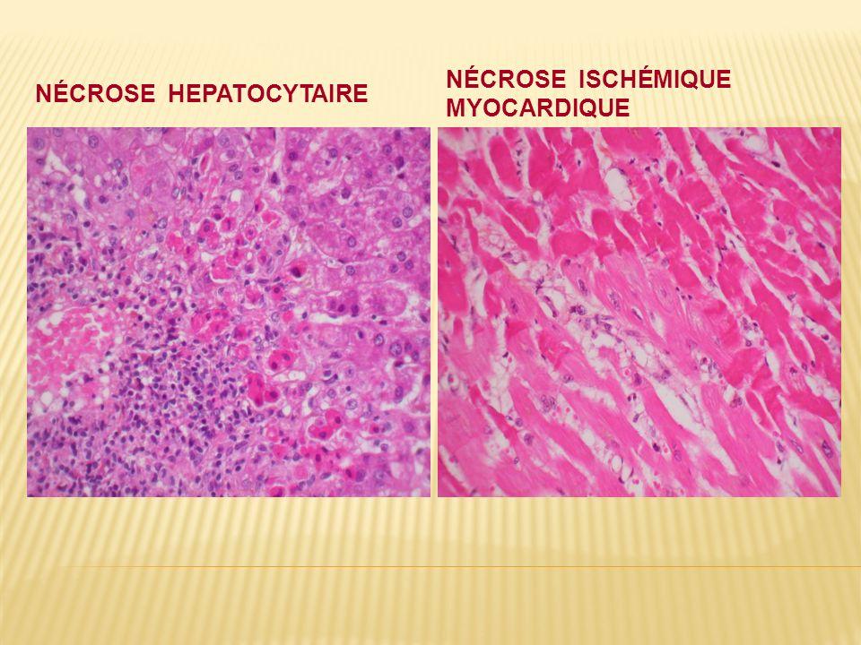 NÉCROSE HEPATOCYTAIRE NÉCROSE ISCHÉMIQUE MYOCARDIQUE