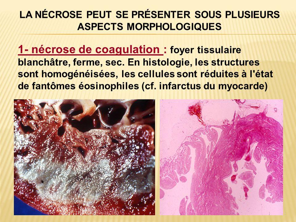 LA NÉCROSE PEUT SE PRÉSENTER SOUS PLUSIEURS ASPECTS MORPHOLOGIQUES 1- nécrose de coagulation : foyer tissulaire blanchâtre, ferme, sec. En histologie,
