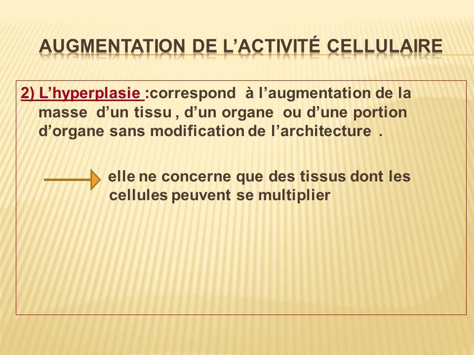 2) Lhyperplasie :correspond à laugmentation de la masse dun tissu, dun organe ou dune portion dorgane sans modification de larchitecture. elle ne conc