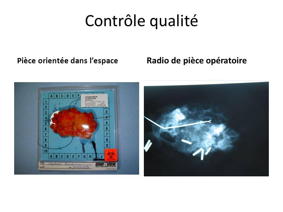 Contrôle qualité Pièce orientée dans lespace Radio de pièce opératoire