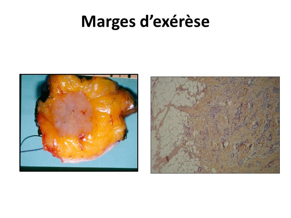 Marges dexérèse