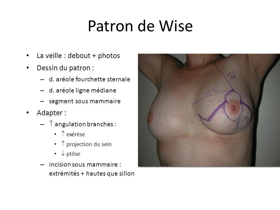 Patron de Wise La veille : debout + photos Dessin du patron : – d. aréole fourchette sternale – d. aréole ligne médiane – segment sous mammaire Adapte