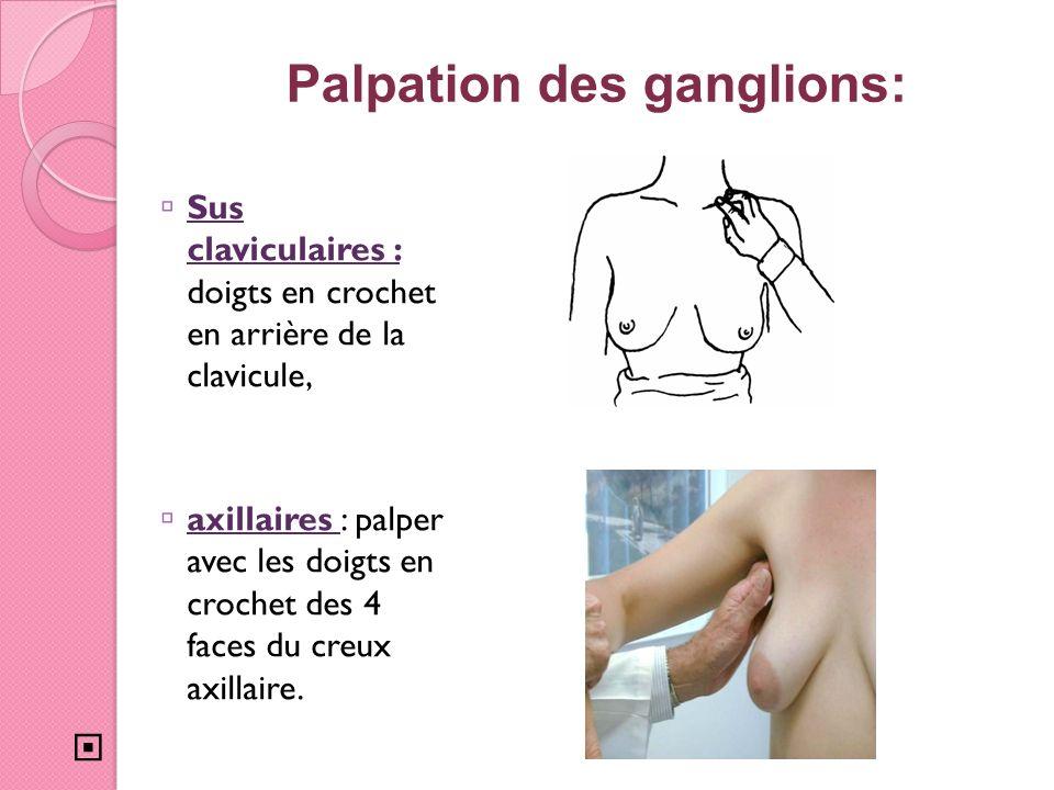 Palpation des ganglions: Sus claviculaires : doigts en crochet en arrière de la clavicule, axillaires : palper avec les doigts en crochet des 4 faces