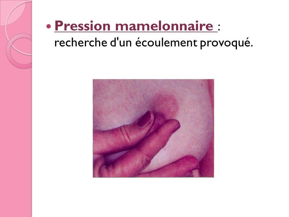 Pression mamelonnaire : recherche d'un écoulement provoqué.
