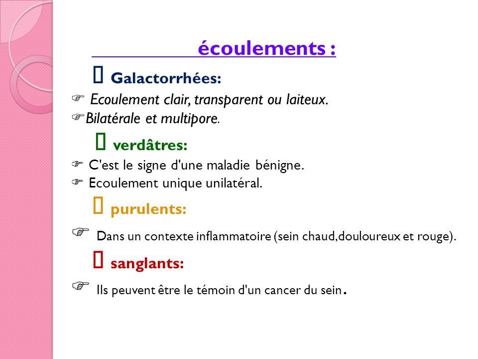 écoulements : Galactorrhées: Ecoulement clair, transparent ou laiteux. Bilatérale et multipore. verdâtres: C'est le signe d'une maladie bénigne. Ecoul
