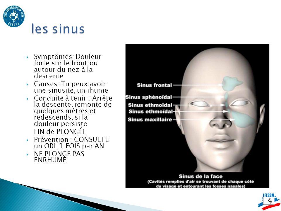 Symptômes: Douleur forte sur le front ou autour du nez à la descente Causes: Tu peux avoir une sinusite, un rhume Conduite à tenir : Arrête la descente, remonte de quelques mètres et redescends, si la douleur persiste FIN de PLONGÉE Prévention : CONSULTE un ORL 1 FOIS par AN NE PLONGE PAS ENRHUMÉ