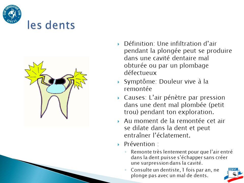 Définition: Une infiltration dair pendant la plongée peut se produire dans une cavité dentaire mal obturée ou par un plombage défectueux Symptôme: Douleur vive à la remontée Causes: Lair pénètre par pression dans une dent mal plombée (petit trou) pendant ton exploration.