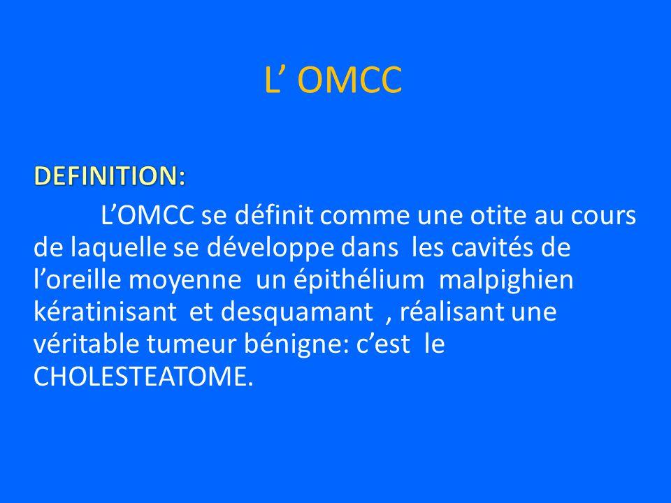 L OMCC