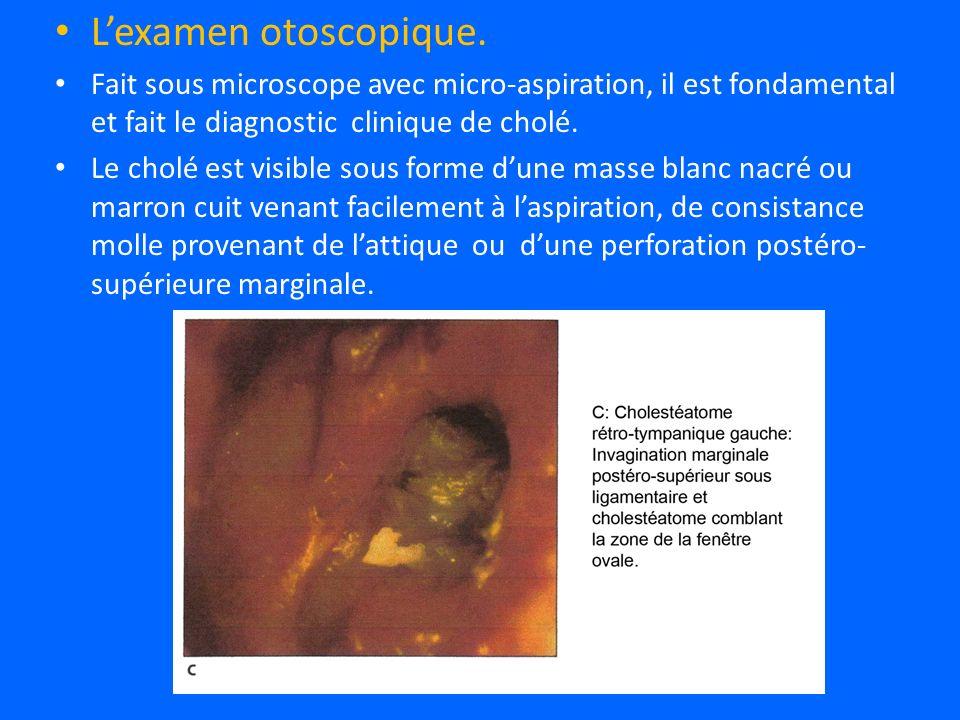 Lexamen otoscopique.