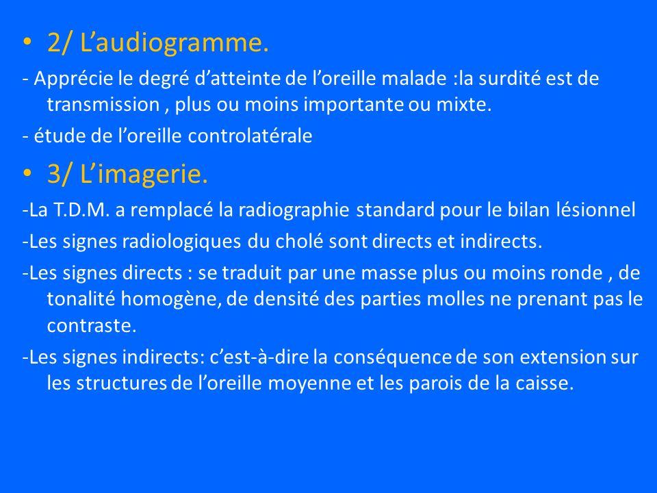2/ Laudiogramme.