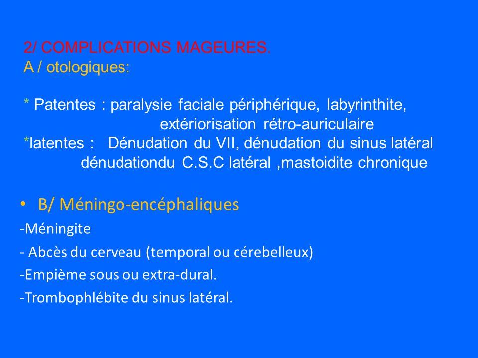 B/ Méningo-encéphaliques -Méningite - Abcès du cerveau (temporal ou cérebelleux) -Empième sous ou extra-dural.