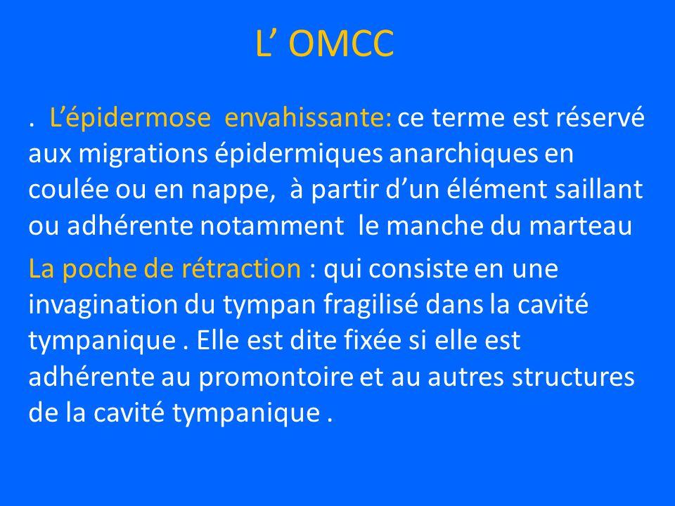 L OMCC.
