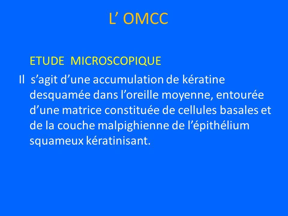 ETUDE MICROSCOPIQUE Il sagit dune accumulation de kératine desquamée dans loreille moyenne, entourée dune matrice constituée de cellules basales et de la couche malpighienne de lépithélium squameux kératinisant.