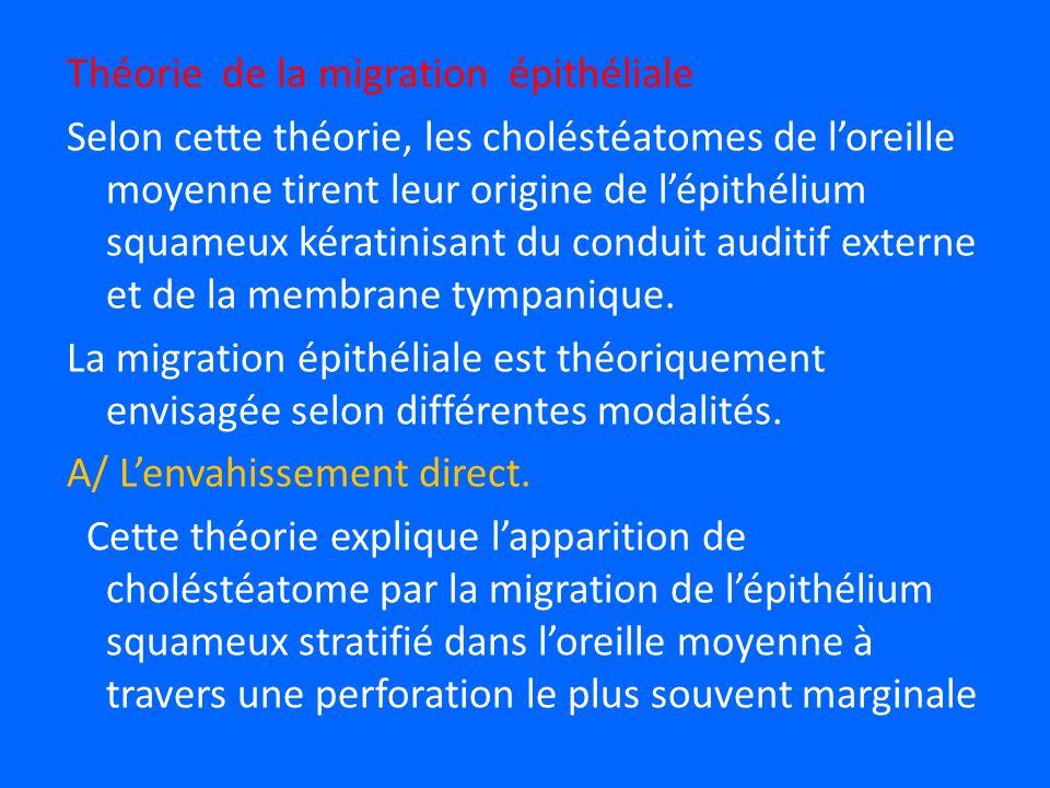 Théorie de la migration épithéliale Selon cette théorie, les choléstéatomes de loreille moyenne tirent leur origine de lépithélium squameux kératinisant du conduit auditif externe et de la membrane tympanique.