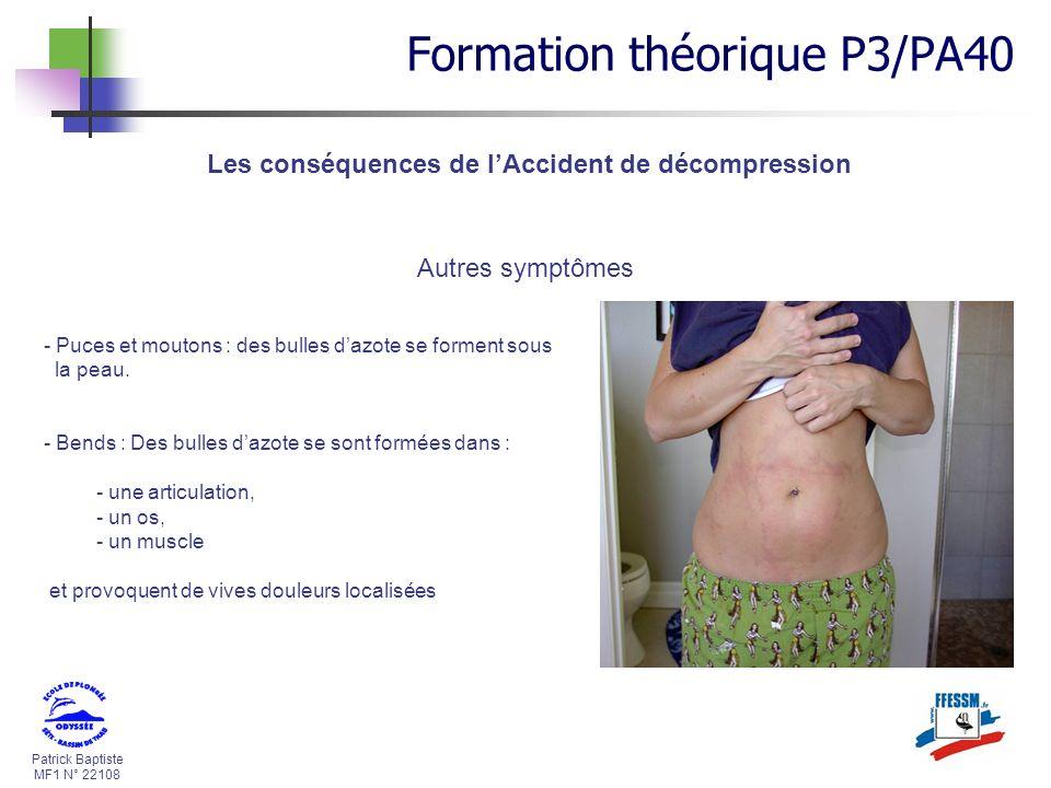 Patrick Baptiste MF1 N° 22108 Les conséquences de lAccident de décompression Autres symptômes - Puces et moutons : des bulles dazote se forment sous l