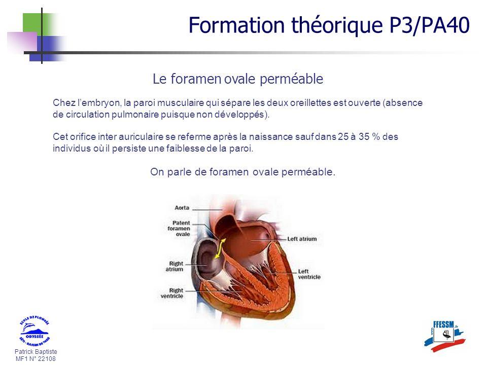 Patrick Baptiste MF1 N° 22108 Le foramen ovale perméable Chez lembryon, la paroi musculaire qui sépare les deux oreillettes est ouverte (absence de ci