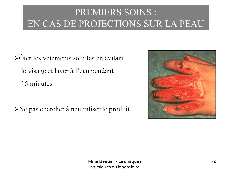 79 PREMIERS SOINS : EN CAS DE PROJECTIONS SUR LA PEAU Ôter les vêtements souillés en évitant le visage et laver à leau pendant 15 minutes. Ne pas cher