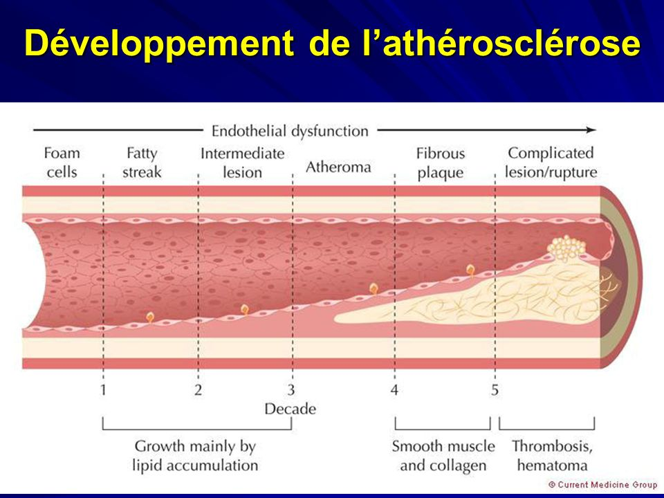 Développement de lathérosclérose