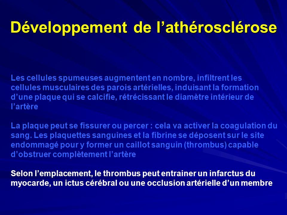 Développement de lathérosclérose Les cellules spumeuses augmentent en nombre, infiltrent les cellules musculaires des parois artérielles, induisant la