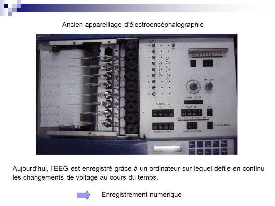 Ancien appareillage délectroencéphalographie Enregistrement numérique Aujourdhui, lEEG est enregistré grâce à un ordinateur sur lequel défile en conti