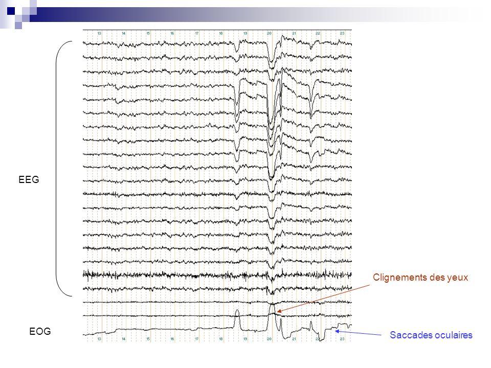 Par convention, ces ondes sont appelées composantes.