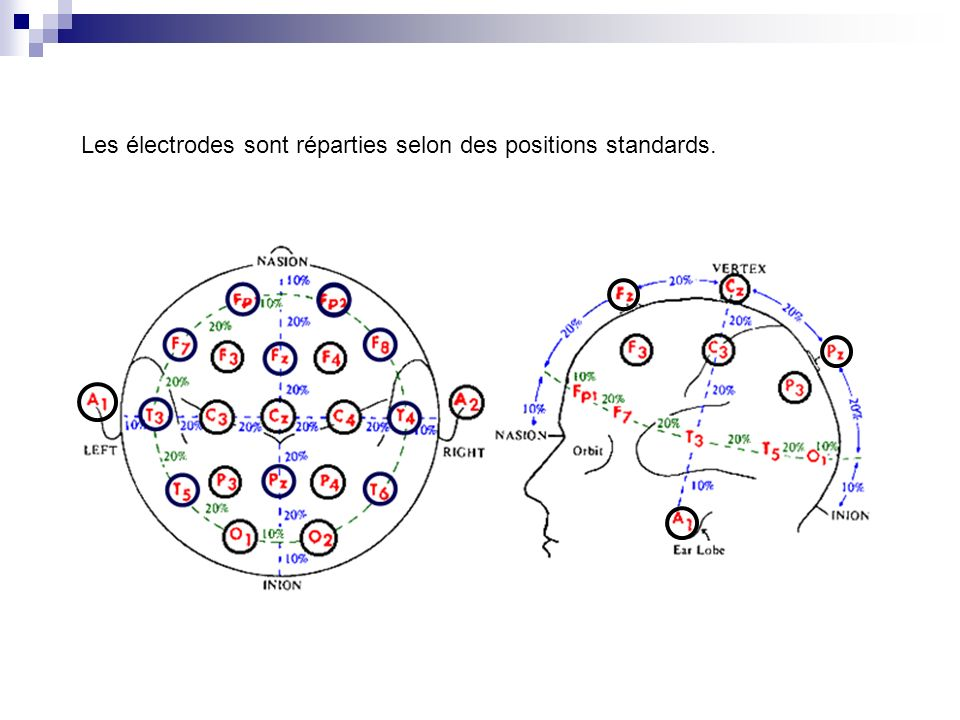 Le bonnet à électrodes est relié à un système informatique où le signal est amplifié.