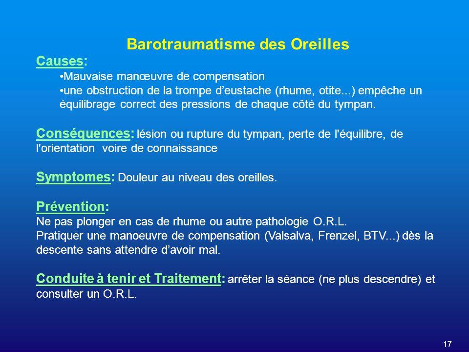 17 Barotraumatisme des Oreilles Causes: Mauvaise manœuvre de compensation une obstruction de la trompe deustache (rhume, otite...) empêche un équilibr