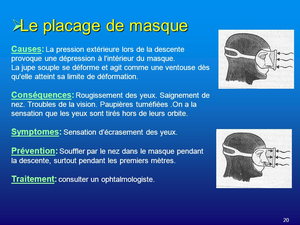 20 Le placage de masque Le placage de masque Causes: La pression extérieure lors de la descente provoque une dépression à l'intérieur du masque. La ju