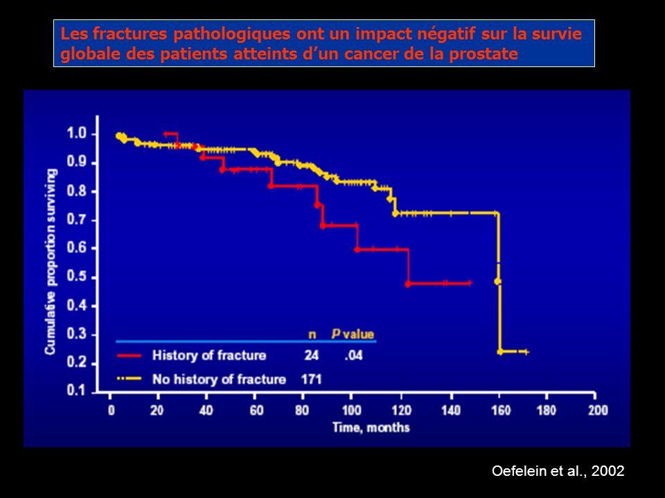 Lhormonothérapie induit une réduction significative de la densité osseuse Etude N° pat.Traitement% chgt densité os (hanche) % chgt densité os (colonne