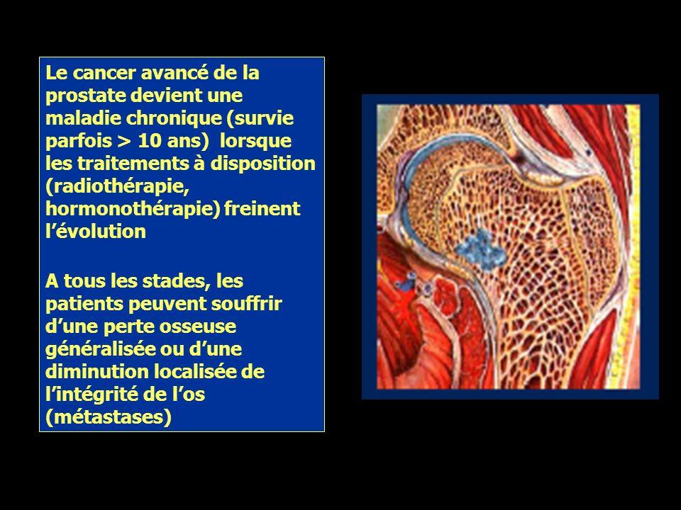 Cancer de la prostate au moment du diagnostic Tumor CAPSULE PROSTATE Cancer localisé Os Maladie systémique Lymphatiques Viscères