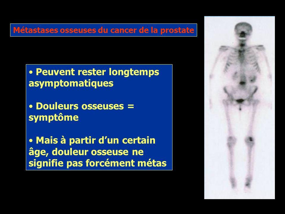 Métastases osseuses du cancer de la prostate Il sagit dune localisation secondaire du cancer dans los Le plus souvent ostéoblastiques Affaiblissement,