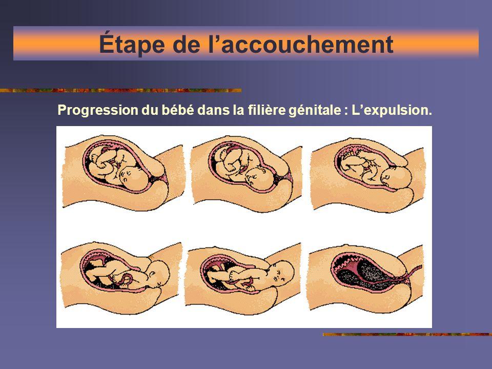 Étape de laccouchement Progression du bébé dans la filière génitale : Lexpulsion.