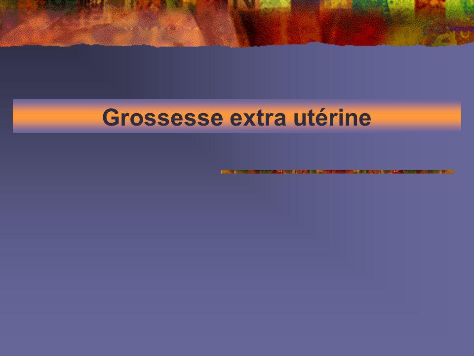 Grossesse extra utérine