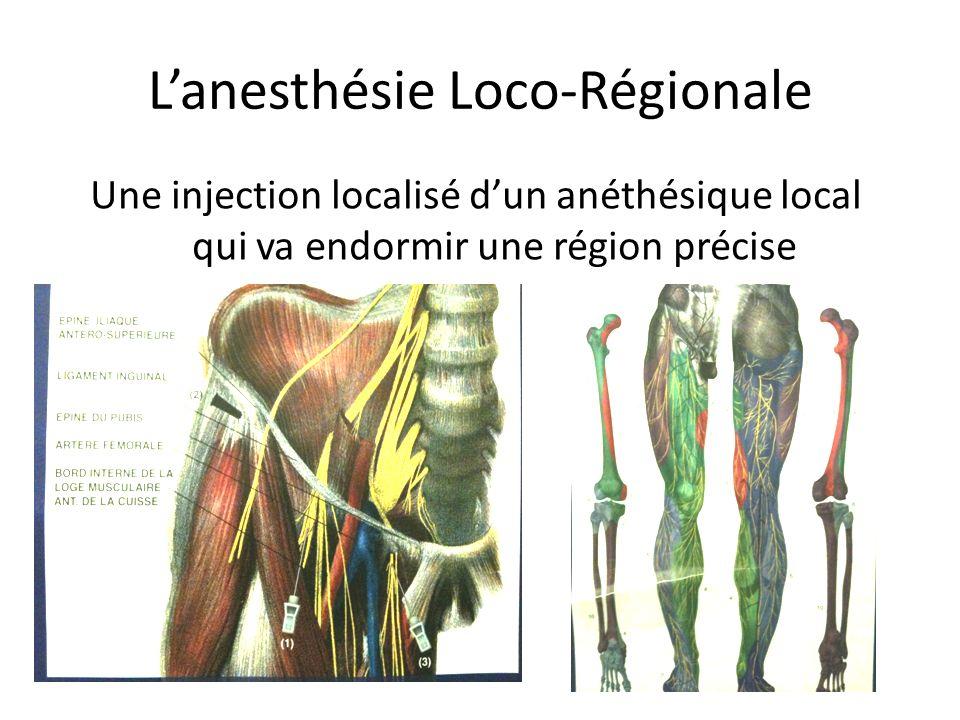 Lanesthésie Loco-Régionale Une injection localisé dun anéthésique local qui va endormir une région précise