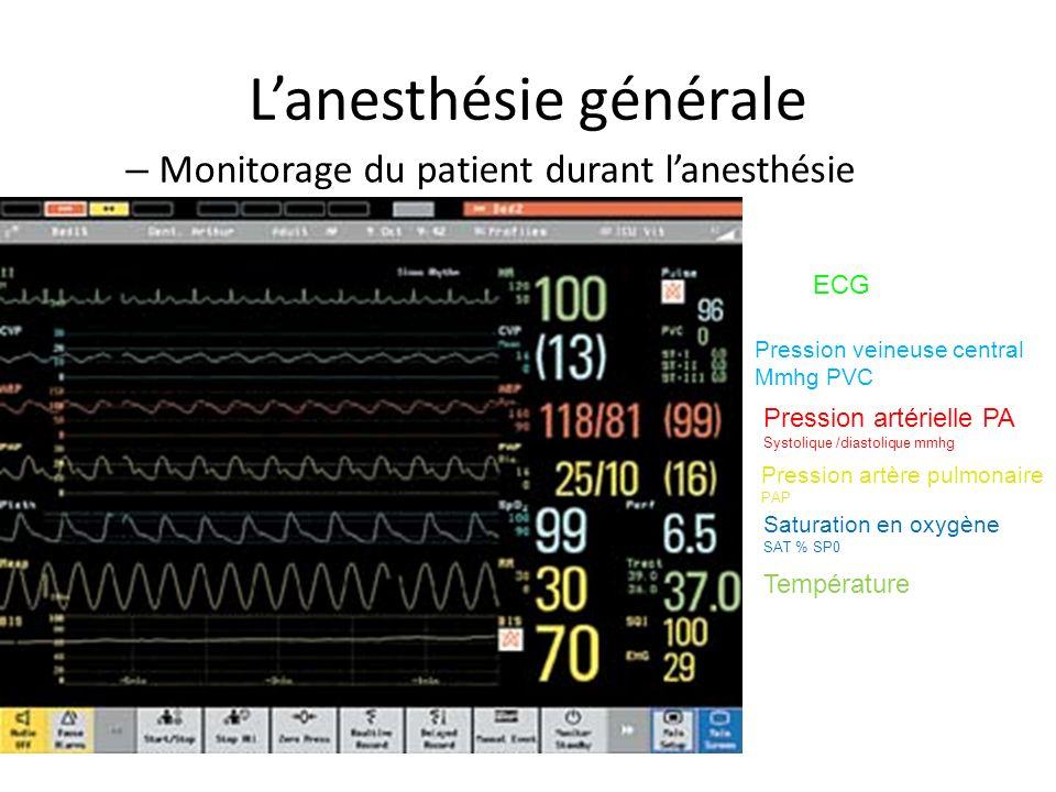 Lanesthésie générale – Monitorage du patient durant lanesthésie ECG Pression veineuse central Mmhg PVC Pression artérielle PA Systolique /diastolique