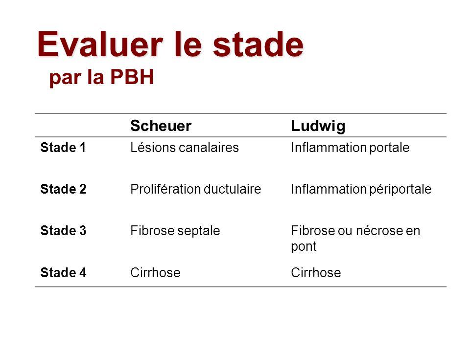 ScheuerLudwig Stade 1Lésions canalairesInflammation portale Stade 2Prolifération ductulaireInflammation périportale Stade 3Fibrose septaleFibrose ou n