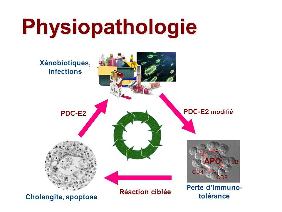 Physiopathologie Cholangite, apoptose Perte dimmuno- tolérance APC CD4 CD8 LB Xénobiotiques, infections PDC-E2 modifié PDC-E2 Réaction ciblée