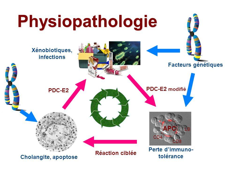 Physiopathologie Cholangite, apoptose Perte dimmuno- tolérance APC CD4 CD8 LB Xénobiotiques, infections PDC-E2 modifié PDC-E2 Réaction ciblée Facteurs
