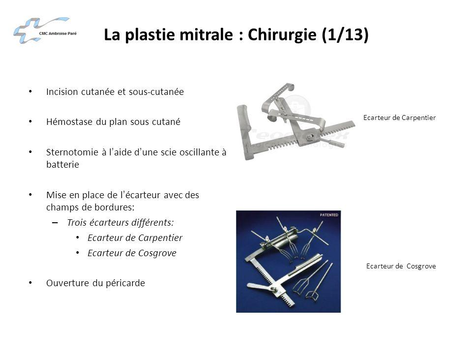 La plastie mitrale : Chirurgie (1/13) Incision cutanée et sous-cutanée Hémostase du plan sous cutané Sternotomie à laide dune scie oscillante à batter