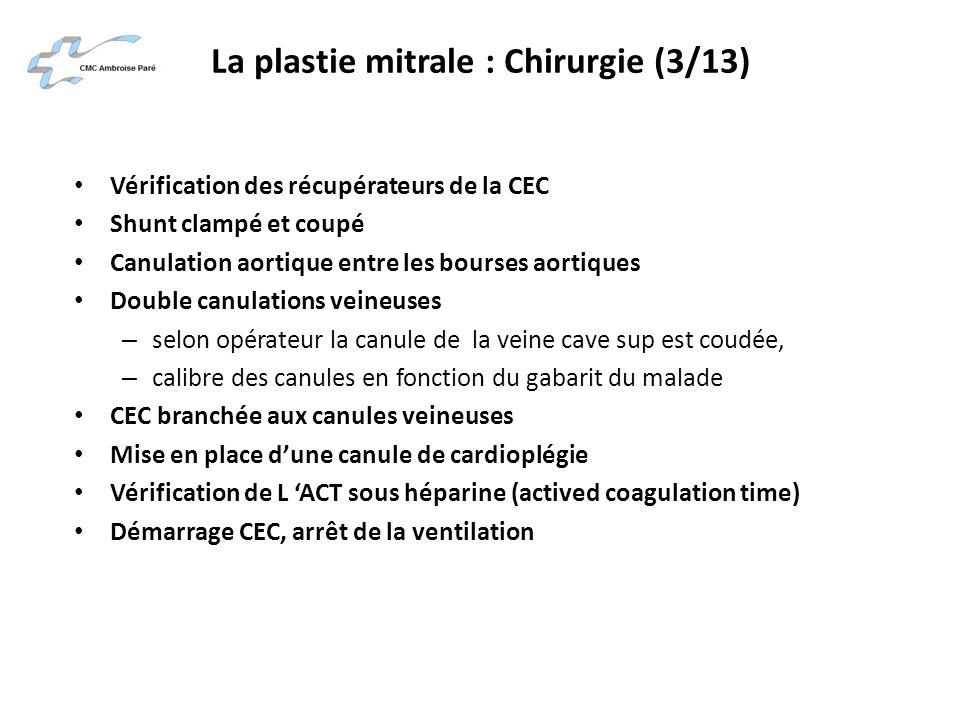 La plastie mitrale : Chirurgie (3/13) Vérification des récupérateurs de la CEC Shunt clampé et coupé Canulation aortique entre les bourses aortiques D