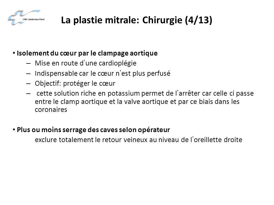 La plastie mitrale: Chirurgie (4/13) Isolement du cœur par le clampage aortique – Mise en route dune cardioplégie – Indispensable car le cœur nest plu