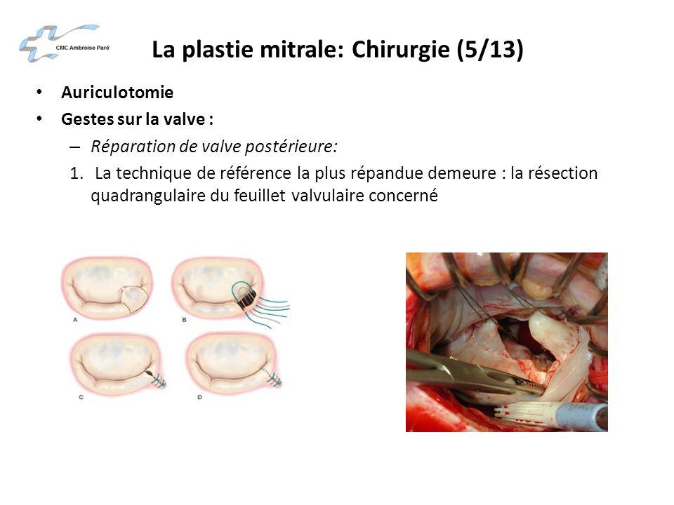La plastie mitrale: Chirurgie (5/13) Auriculotomie Gestes sur la valve : – Réparation de valve postérieure: 1. La technique de référence la plus répan